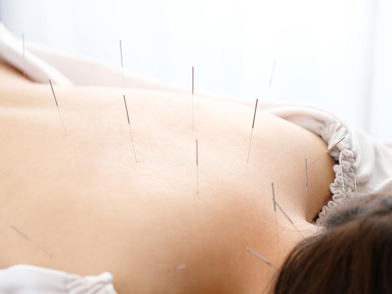 鍼灸の施術・効果について